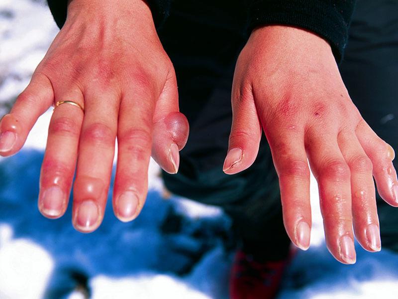 Аллергия на холод суставы дисплазия тазобедр суставов индекс