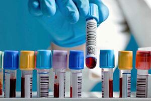 Анализ крови IgE и показания к проведению исследования