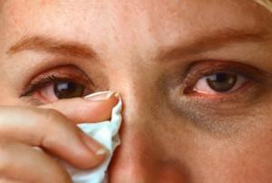Аллергический отек век и особенности его лечения