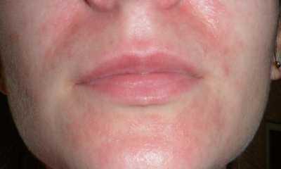 Аллергический дерматит на лице фото лечение