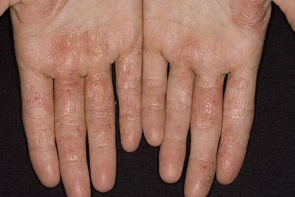 Аллергическая экзема: лечение у детей и взрослых медикаментами и народными средствами