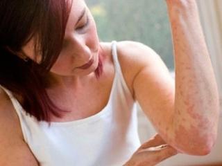 Чем опасна крапивница у взрослых и как ее лечить