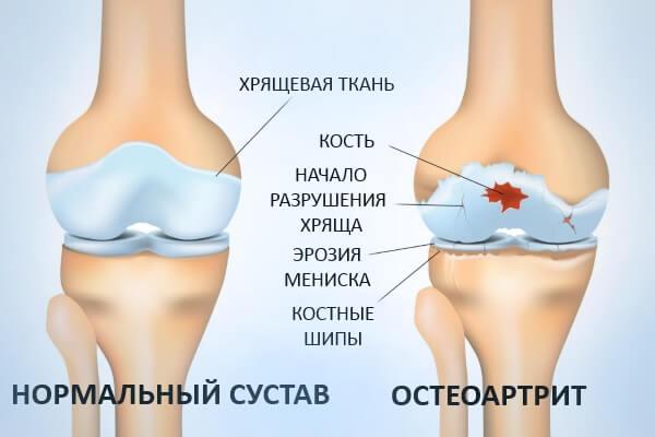 Артроскопический дебримент тазобедренного сустава боли в суставах при климаксе лечение народными средствами