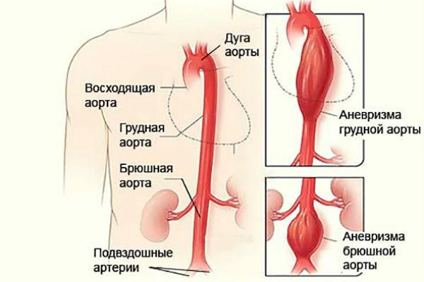 Норма холестерина низкой и низкой плотности