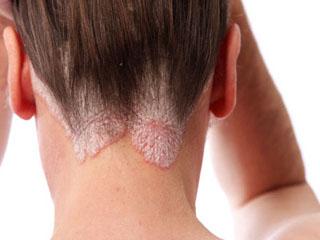 Аллергический псориаз