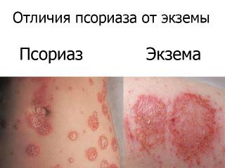 Как отличить экзему от псориаза: симптомы, внешний вид и триггеры заболеваний