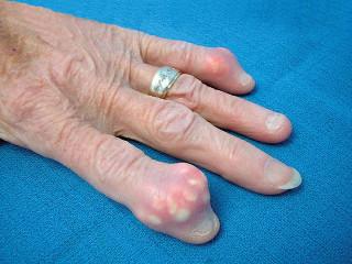 Подагра: симптомы у мужчин и женщин, лечение медикаментами и народными средствами