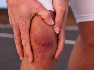 Опухоль колена: причины, особенности проявления, методы лечения и советы по профилактике развития