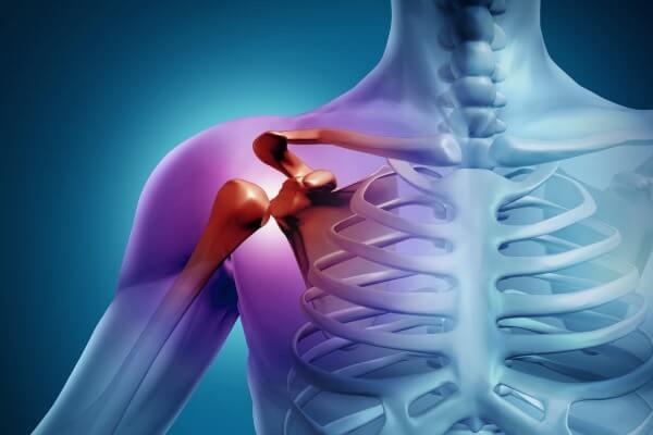 Изображение - Артроз плечевого сустава лечение народными средствами 35-1