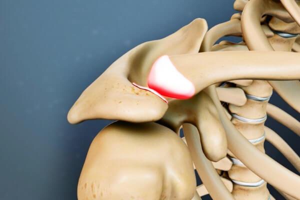 Изображение - Артроз плечевого сустава лечение народными средствами 35-2