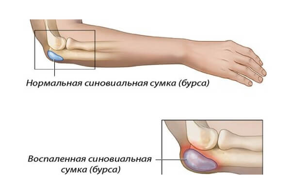 Хронический бурсит локтевого сустава лечение димексидом артрит плечевых суставов
