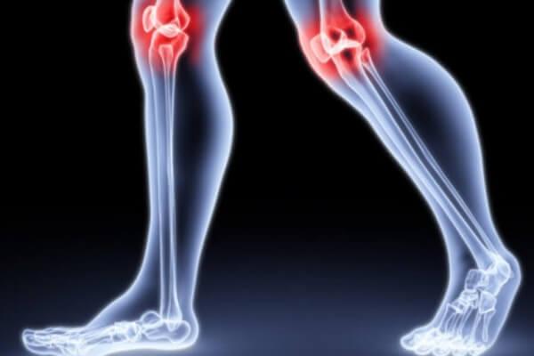 Изображение - Проблемы с суставами симптомы 66-5