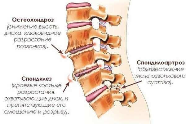 Остеохондроз грудного отдела: признаки и причины возникновения, как лечить медикаментами и народными средствами