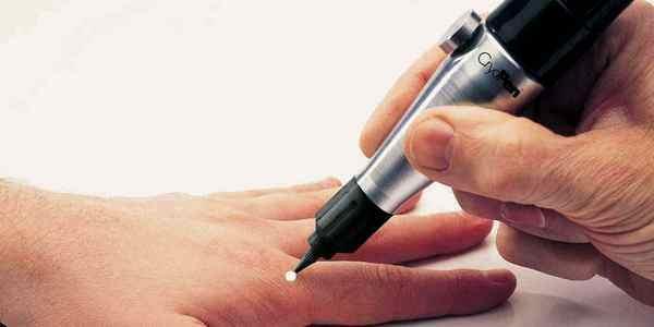 Удаление бородавки лазером (выжигание): преимущества метода и его проведение