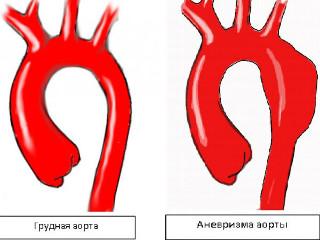 Разрыв аневризмы аорты брюшной полости