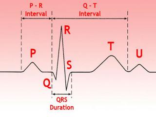ЭКГ-расшифровка и результаты, как прочитать кардиограмму сердца самостоятельно