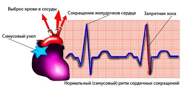 Синусовый ритм сердца: что это значит, ЭКГ (кардиограмма) расшифровка, норма и заключение