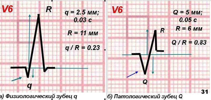Б рис 3 а - острейшая (часы) стадия острого инфаркта миокарда нижней стенки лж (подъем st ii, iii, avf)