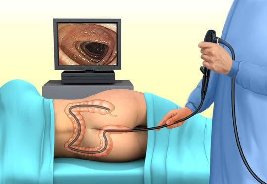 Как проводится колоноскопия