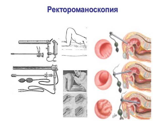 Ректороманоскопия: когда назначается, как проводится и кому назначается