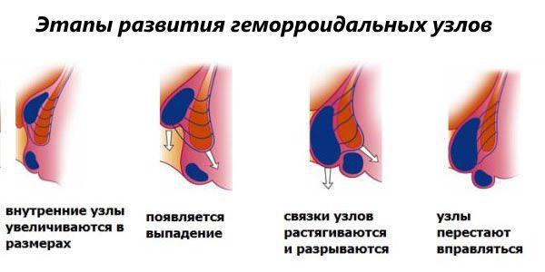 Геморроидальные шишки лечение