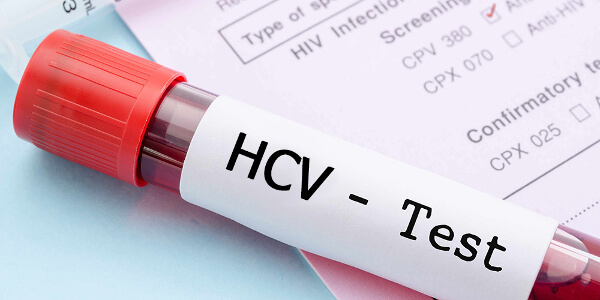 Тест на гепатит С
