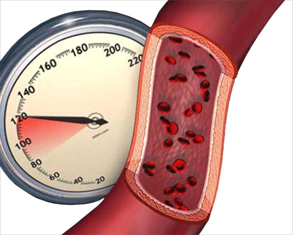 Наручные часы для измерения артериального давления
