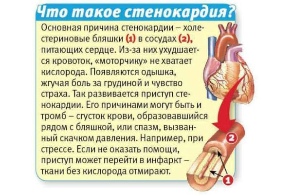 Грудная жаба или стенокардия: что это за болезнь, стенокардия ...