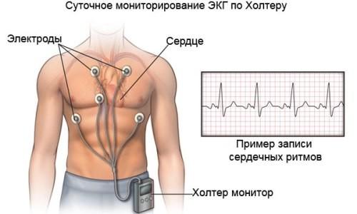 Суточный мониторинг сердца как проводится