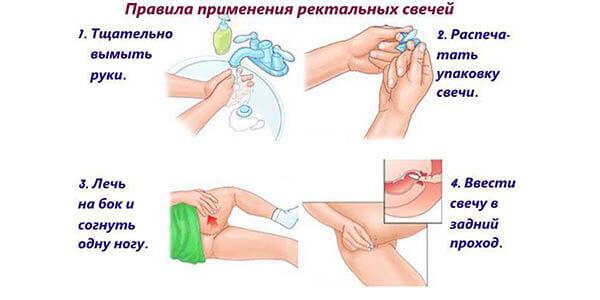 Свечи для иммунитета в гинекологии 23