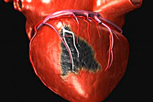 Миокарда инфаркт