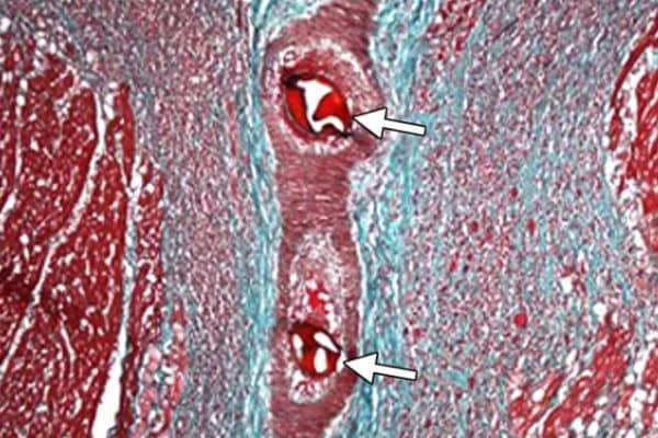 микроинфаркт у женщин и мужчин