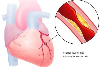 Как распознать стенокардию по симптомам, какой бывает характер боли при стенокардии