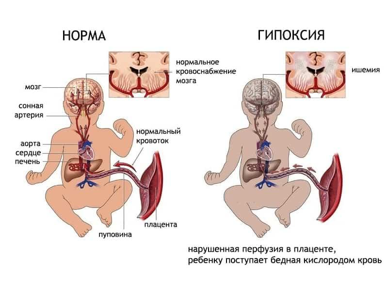 Беременность и энцефалопатия головного мозга