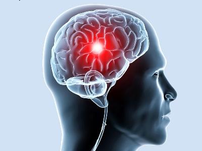 Поражение сосудов головного мозга