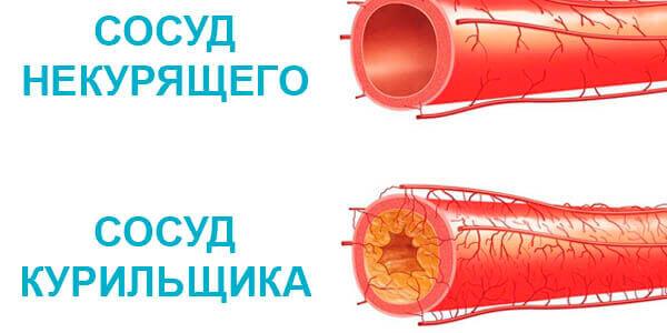 Влияние никотина на сосуды