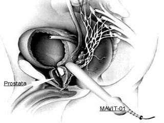Лечение Мавитом воспаления предстательной железы: показания, противопоказания, инструкция и отзывы