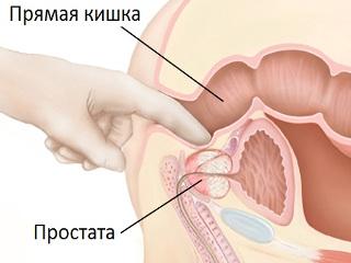 Делает массаж простаты пальцем мужику