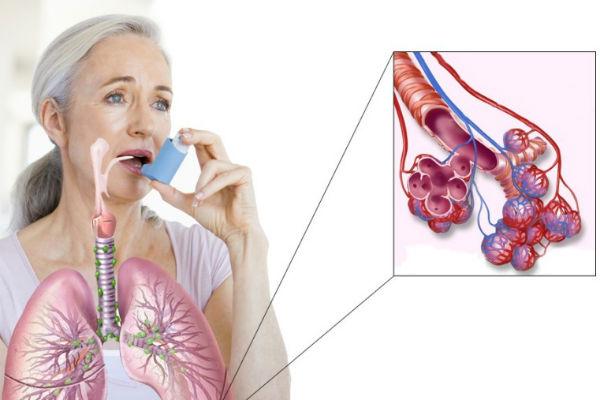 Пентоксифиллин (капельница): от чего помогает и что лечит препарат