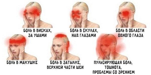 Кластерная головная боль: симптомы, диагностика, особенности течения и лечение