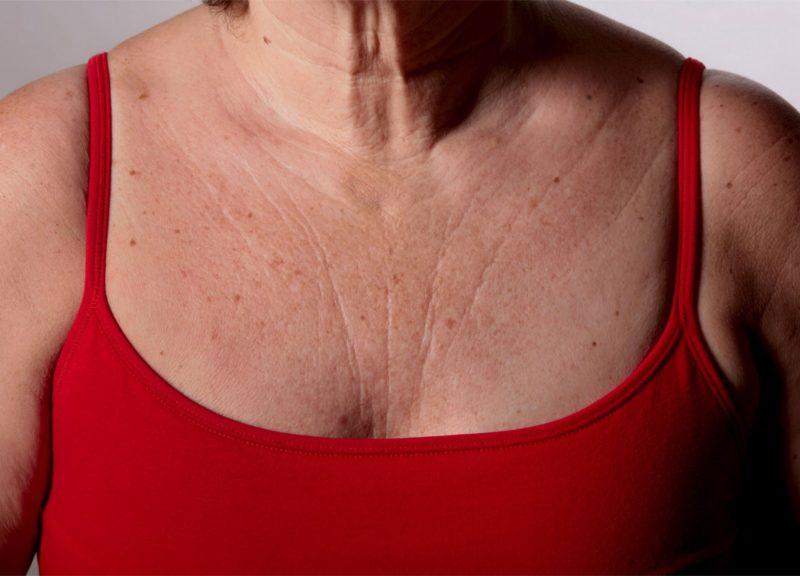 Как убрать морщины на шее в домашних условиях с помощью косметических средств, гимнастики и массажа