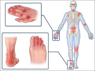 Лекарства при воспалении суставов и костей
