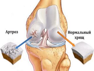 Изображение - Препараты репейника при болезнях суставов 7-2