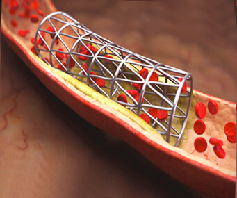 Стентирование коронарной артерии