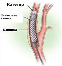 Стентирование сосудов, коронарных артерий: особенности проведения операции и возможные осложнения