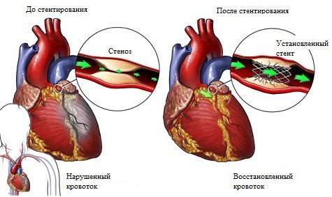 Стентирование сосудов, коронарных артерий: особенности проведения ...