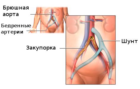 Шунтирование брюшной аорты