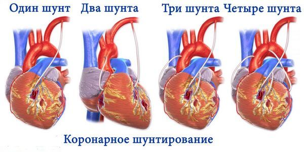 Операции на сердце и сосудах: виды и показания к их проведению
