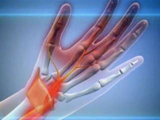 От чего немеет левая рука – причины, симптомы, и что делать, если немеет и затекает левая рука