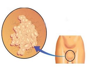Бородавки во влагалище: причины возникновения и методы удаления папиллом